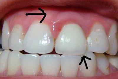 牙齿松动怎么办 牙齿松动怎么治疗牙齿松动怎么办 牙齿松动怎么治疗