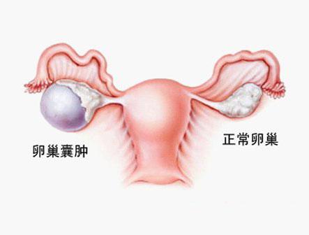 引起卵巢囊肿的原因