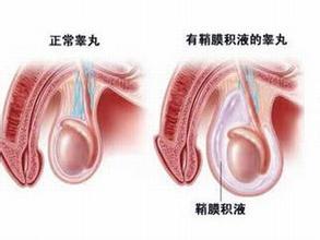 睾丸发炎怎么办