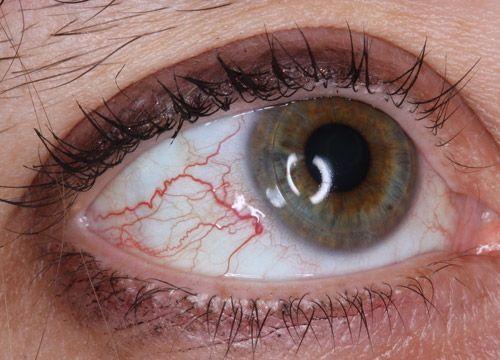 眼睛红血丝是怎么回事