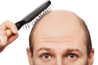 男人脱发是什么原因