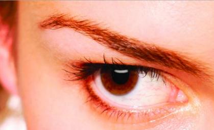 眼睛红血丝是怎么回事_保健图库频道_医网