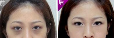 眼袋和黑眼圈的区别