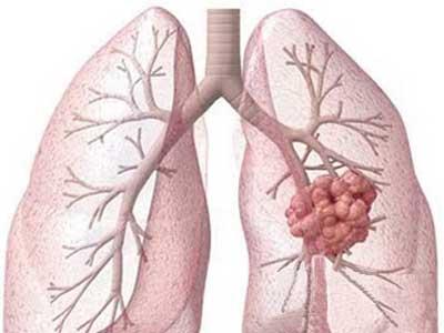 肺癌饮食禁忌