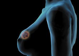 乳腺癌的早期症状图片