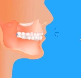 牙齿保健操图解