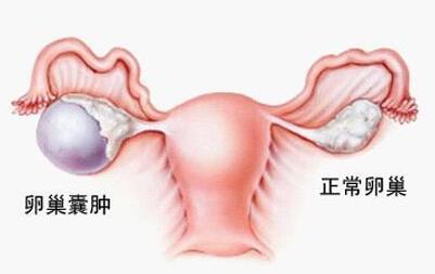 女性卵巢囊肿有什么危害