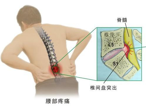 腰间盘突出术后注意事项