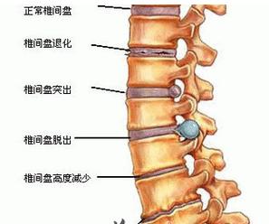 腰椎间盘突出是怎样引起的