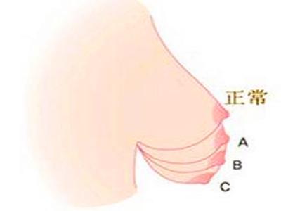 女人乳房松软下垂的原因