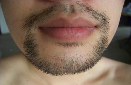 怎么样让胡子长得慢