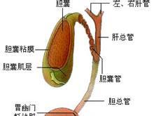 急性胆囊炎饮食