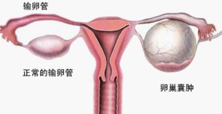 卵巢囊肿是怎么引起的
