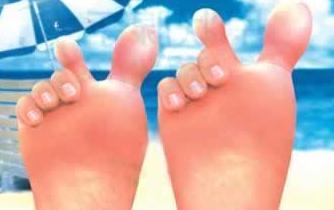 怎样治疗脚气 才能断根