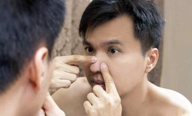 男生要怎么保养皮肤