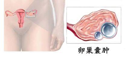卵巢囊肿是怎么形成的