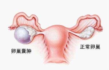 巧克力囊肿和卵巢囊肿的区别