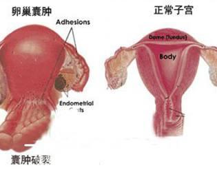 怎样预防卵巢囊肿图片