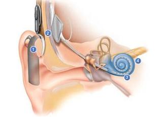 神經性耳聾是什么