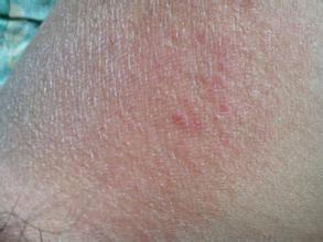 睾丸皮肤痒怎么回事?