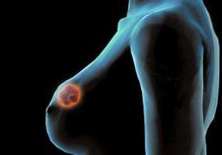 乳房长纤维瘤怎么办