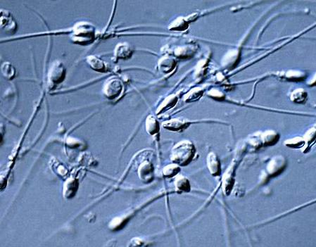 男人一生有多少精子呢