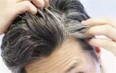 老年人如何防止白发疯长