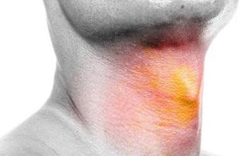 慢性肥厚性咽炎症状