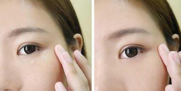眼部脂肪粒怎么去除