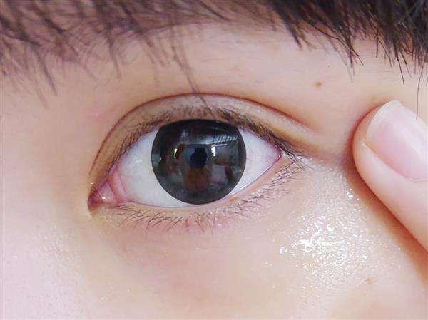 眼部有脂肪粒怎么办