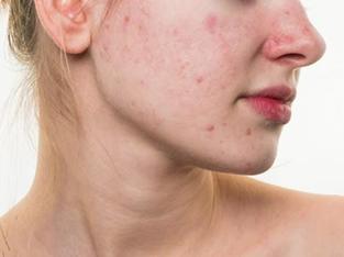 下颚长痘痘是什么原因
