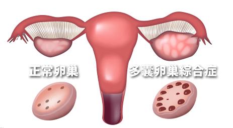 多囊卵巢综合症表现