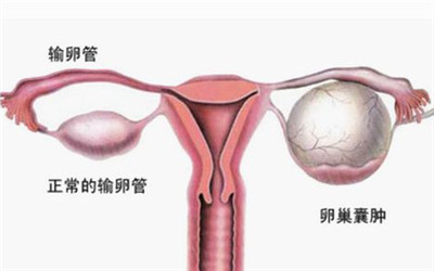 卵巢囊肿会有什么影响