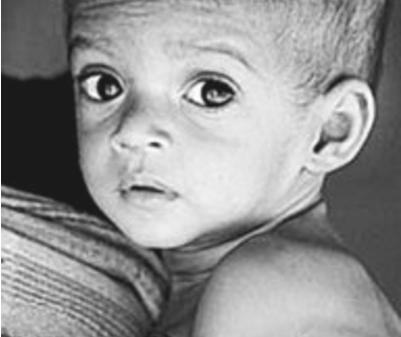 新生儿营养不良的症状