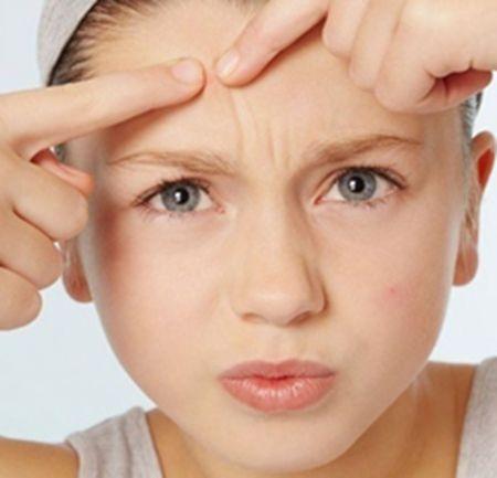 小女孩额头长痘痘是什么原因