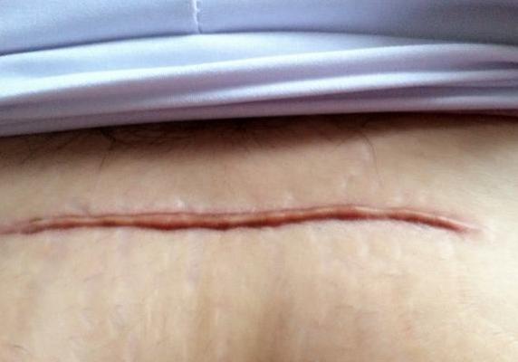 剖腹产疤痕增生怎么办呢
