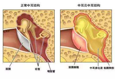 中耳炎的症状与治疗有哪些