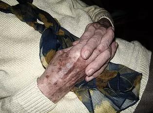 老人斑是怎样形成的
