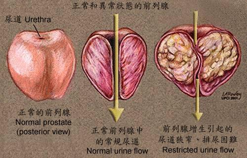 细菌性前列腺炎怎么引起的