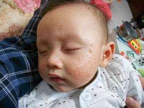 宝宝脸上长湿疹怎么办