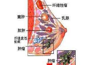 乳腺增生囊肿怎么办