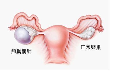 卵巢囊肿是怎样形成的