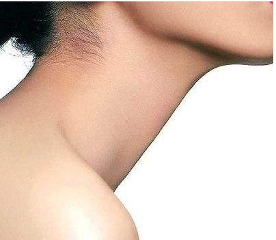 怎样减脖子上的赘肉
