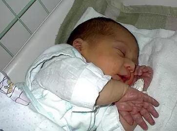 婴儿脸上湿疹严重怎么办好呢