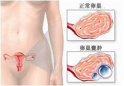 输卵管囊肿有什么症状