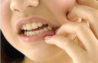 牙痛怎么快速止痛