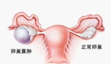 卵巢囊肿的症状及治疗