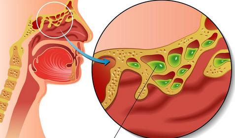 中医治疗宫颈糜烂方法_鼻窦炎中医治疗方法_治疗鼻窦炎的最快方法
