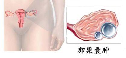 女人卵巢囊肿注意些什么