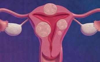 子宫肌瘤如何调理